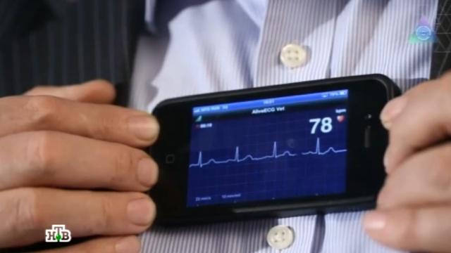Израильские ученые научились оценивать здоровье человека на расстоянии.здоровье, Израиль, медицина, технологии, эксклюзив.НТВ.Ru: новости, видео, программы телеканала НТВ