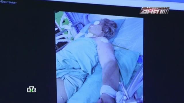 Родственники пытаются спасти россиянку, попавшую в Таиланде в ДТП.ДТП, МЧС, Таиланд, больницы, кома, страхование, туризм и путешествия.НТВ.Ru: новости, видео, программы телеканала НТВ