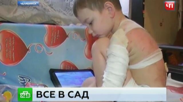 После сюжета НТВ прокуратура наведалась в детсад, где ребенка окатили кипящим супом.дети и подростки, детские сады, несчастные случаи, НТВ, Челябинск.НТВ.Ru: новости, видео, программы телеканала НТВ