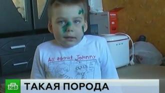 В Нижнем Новгороде хозяева искусавшего ребенка ротвейлера отказались признать вину