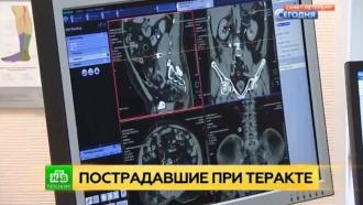 У тяжело раненного при взрыве в Петербурге врачи обнаружили гайку в животе