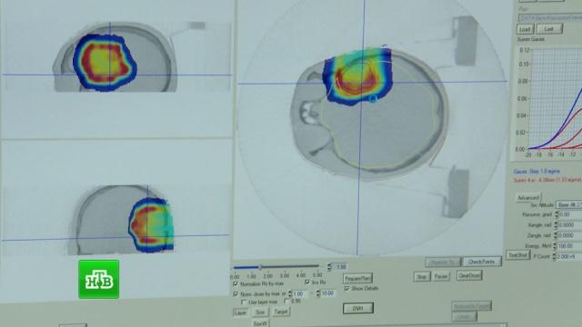 В Обнинске открыли Центр высокоточной радиологии для лечения рака