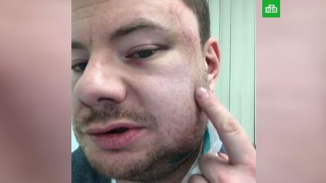 Музыканта DJ Smash жестоко избили в пермском баре.драки и избиения, музыка и музыканты, Пермь, знаменитости.НТВ.Ru: новости, видео, программы телеканала НТВ