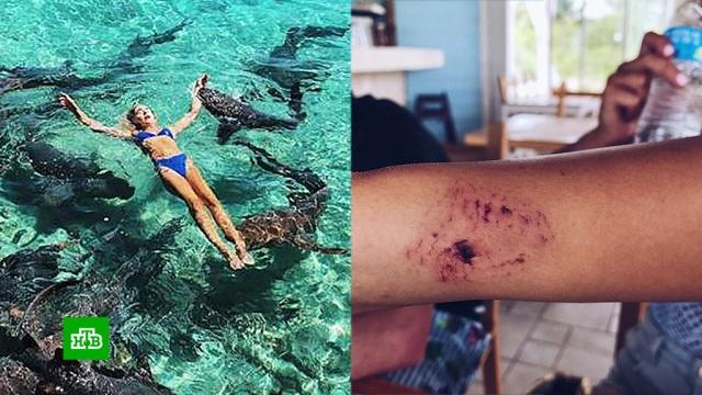 Пострадавшая модель рассказала о нападении акул на Багамах.акулы, модели, нападения.НТВ.Ru: новости, видео, программы телеканала НТВ
