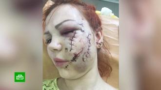 Немецкий хирург «вернул лицо» изувеченной в караоке-баре россиянке