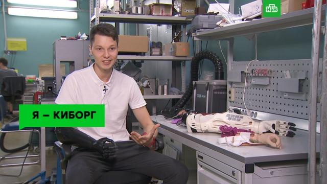 Я— киборг: как живут люди сэлектронными протезами иимплантатами.ЗаМинуту, наука и открытия, технологии.НТВ.Ru: новости, видео, программы телеканала НТВ