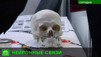 В Северной столице проходит всероссийский съезд нейрохирургов