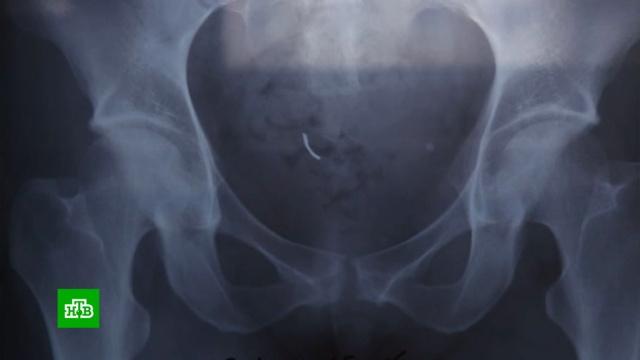 Жительница Белгородской области требует наказать врачей за оставленную в ее теле иглу.Белгородская область, беременность и роды, медицина, халатность.НТВ.Ru: новости, видео, программы телеканала НТВ