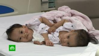 Хирурги вМельбурне успешно разделили сиамских близнецов из Бутана
