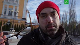 На ЛГБТ-акции в Киеве избили канадского фотографа.Несколько человек пострадали в результате нападения радикалов на участников акции в защиту прав трансгендерных людей в Киеве.гомосексуализм/ЛГБТ, драки и избиения, Киев, Украина.НТВ.Ru: новости, видео, программы телеканала НТВ