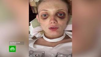 Фотомодель показала свое разбитое экс-любовником лицо