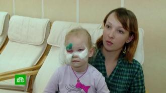 На Урале ищут виновных в нападении бездомной собаки на 4-летнюю девочку