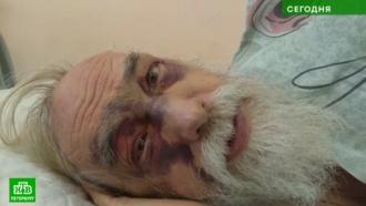 В Петербурге пенсионер госпитализирован с тяжелейшими травмами после падения сосульки