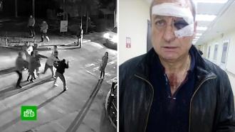 Бывшая жена, сын и пасынок избили известного крымского барда