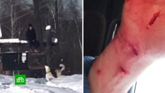Окровавленный подросток чудом спасся от голодных овчарок