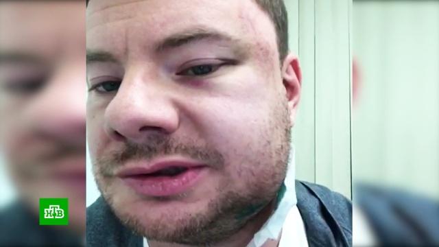 Пермский экс-депутат заплатит 11миллионов за избиение DJ Smash.Пермь, драки и избиения, знаменитости, суды.НТВ.Ru: новости, видео, программы телеканала НТВ