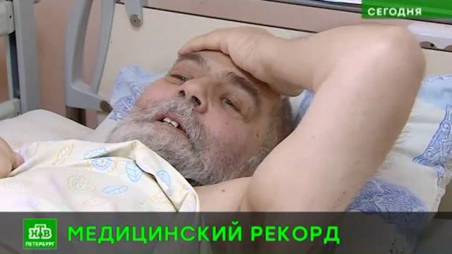 Петербургские хирурги удалили полукилограммовую аденому без единого разреза.Санкт-Петербург, медицина, технологии.НТВ.Ru: новости, видео, программы телеканала НТВ