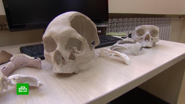 Созданный вСтаврополе уникальный имплант применяют при операциях на черепе.Ставрополь, медицина, наука и открытия.НТВ.Ru: новости, видео, программы телеканала НТВ