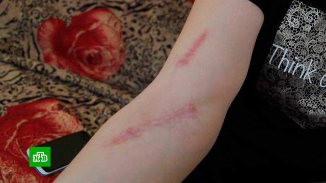 Жительница Чувашии судится с медиками из-за оставленной в ее вене иглы.Чувашия, врачебные ошибки, медицина.НТВ.Ru: новости, видео, программы телеканала НТВ