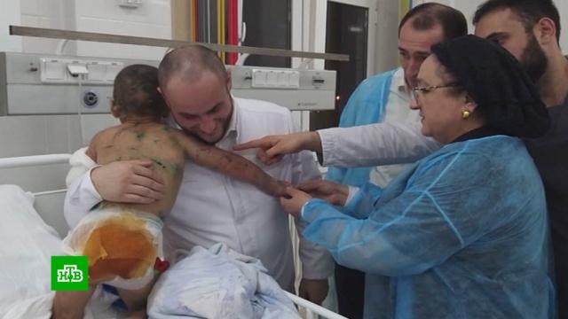 Ожоги, укусы и перелом: в Ингушетии искалечили 7-летнюю девочку.Ингушетия, дети и подростки, жестокость, больницы, драки и избиения.НТВ.Ru: новости, видео, программы телеканала НТВ