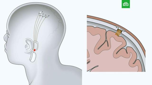 Маск показал секретные разработки по соединению мозга с компьютером.Стартап Илона Маска Neuralink, работающий над подключением человеческого мозга к искусственному интеллекту, впервые представил свои технологии. До сих пор этот проект считался «сверхсекретным».Илон Маск, технологии.НТВ.Ru: новости, видео, программы телеканала НТВ