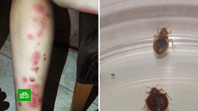 Незваный гость: откуда берутся атакующие россиян тропические клопы.насекомые.НТВ.Ru: новости, видео, программы телеканала НТВ