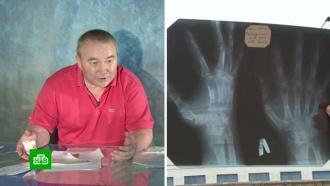 Не увидели перелом: сотрудник пермского химзавода судится с врачами