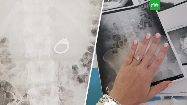 Американка съела во сне обручальное кольцо с бриллиантом.Необычный путь проделало кольцо, которое житель Калифорнии подарил своей невесте.США, больницы, браки и разводы.НТВ.Ru: новости, видео, программы телеканала НТВ