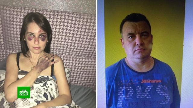 Жестоко избитая таксистом москвичка требует компенсацию в 3 миллиона.Москва, драки и избиения, суды, такси, нападения, жестокость.НТВ.Ru: новости, видео, программы телеканала НТВ