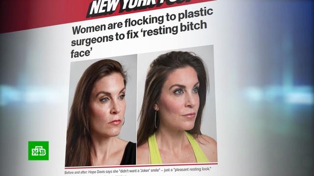 Американки пытаются избавиться от стервозных лиц с помощью ботокса.США, медицина, пластическая хирургия.НТВ.Ru: новости, видео, программы телеканала НТВ