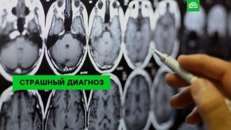 Рак мозга: симптомы ишансы на спасение