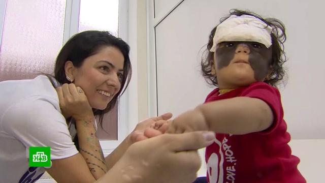Мама девочки с«маской Бэтмена» рассказала оее самочувствии после операции.Краснодар, США, больницы, врачи, дети и подростки.НТВ.Ru: новости, видео, программы телеканала НТВ