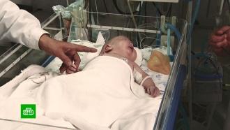 Право на жизнь: как спасти младенца весом меньше килограмма