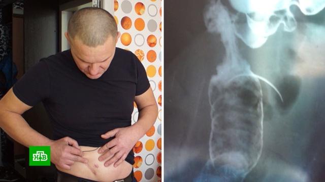 Чебоксарец 17 лет прожил с иглой в животе.Чувашия, больницы, врачебные ошибки, медицина.НТВ.Ru: новости, видео, программы телеканала НТВ