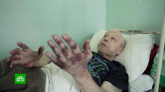 Пенсионеру в омской больнице отказались делать перевязку.Омск, больницы, пенсионеры, скандалы.НТВ.Ru: новости, видео, программы телеканала НТВ