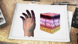 Вместо ампутации: как спасти обмороженные руки иноги
