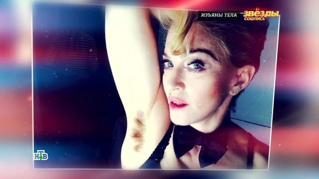 Жир на боках и небритые ноги: российские звезды против бодипозитива.артисты, знаменитости, интервью, лишний вес/диеты/похудение, модели, шоу-бизнес, эксклюзив.НТВ.Ru: новости, видео, программы телеканала НТВ