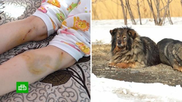Чиновники ответят за нападение собак на ребенка в Магадане.НТВ.Ru: новости, видео, программы телеканала НТВ