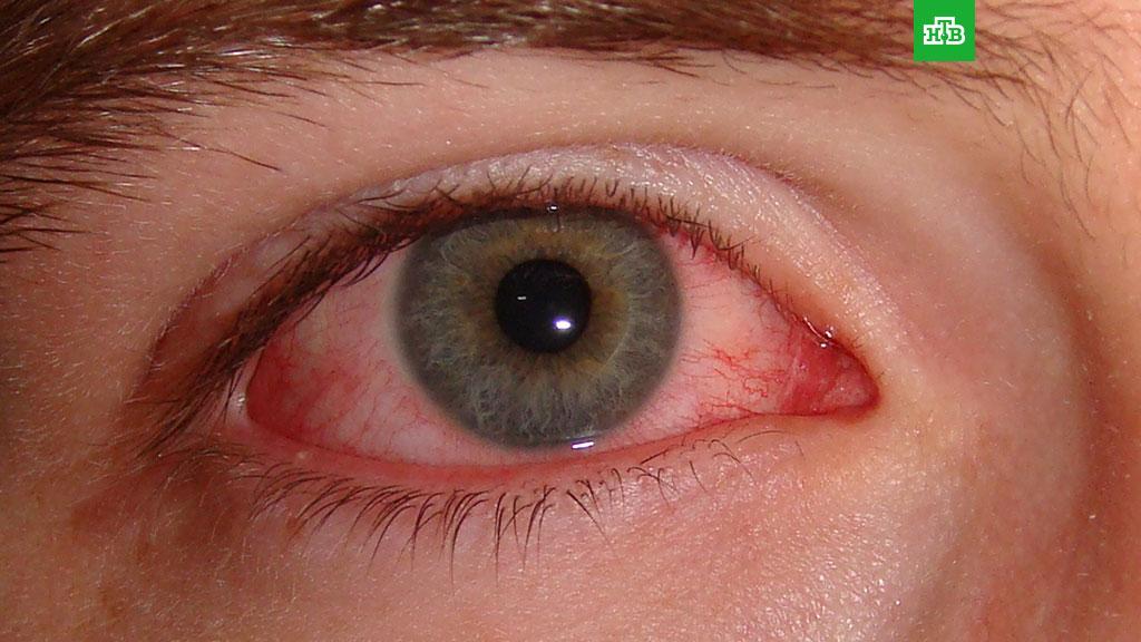 Обнаружен новый симптом коронавируса // НТВ.Ru