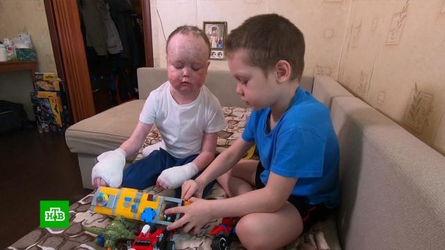 Победившему рак Салиму нужна помощь вборьбе смучительными осложнениями.SOS, благотворительность, дети и подростки.НТВ.Ru: новости, видео, программы телеканала НТВ