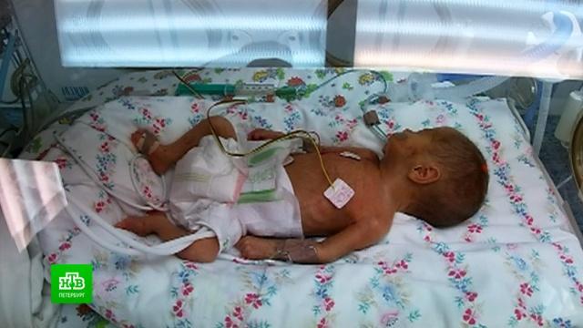 Как петербургские неонатологи спасают жизнь первого малыша сковидом.Санкт-Петербург, больницы, коронавирус, медицина, младенцы, эпидемия.НТВ.Ru: новости, видео, программы телеканала НТВ