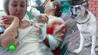 Алабай отгрыз руку матери двоих детей вПодмосковье