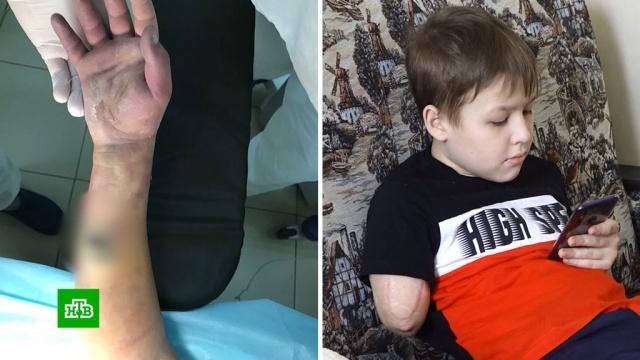 Лишившийся руки мальчик получит 1, 5млн рублей компенсации от больницы.врачебные ошибки, дети и подростки, компенсации, суды.НТВ.Ru: новости, видео, программы телеканала НТВ