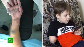 Лишившийся руки мальчик получит 1,5млн рублей компенсации от больницы
