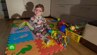 Страдающей синдромом Ундины двухлетней Лине нужны деньги на операцию