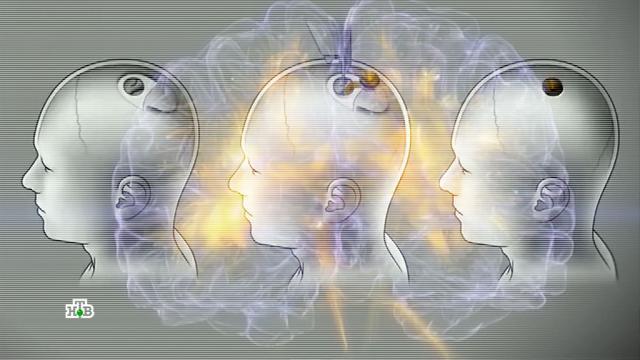 Чип вмозгу: сможетли искуственный интеллект поработить человечество.компьютеры, технологии.НТВ.Ru: новости, видео, программы телеканала НТВ