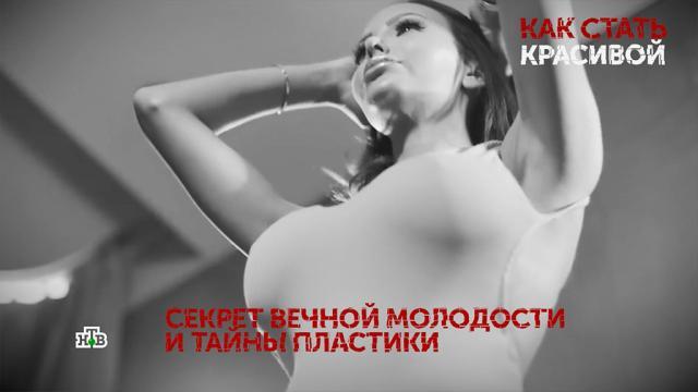 Почему российские рэперы влюбляются в «одинаковых» женщин.артисты, знаменитости, музыка и музыканты, пластическая хирургия, шоу-бизнес, эксклюзив.НТВ.Ru: новости, видео, программы телеканала НТВ