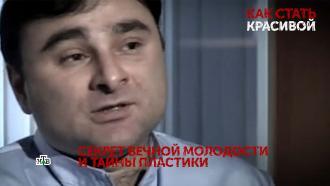 Звездный хирург Мамедов с дипломом педиатра прячется от правосудия в Баку