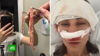 Жительница Екатеринбурга страдала от боли <nobr>из-за</nobr> тампона, забытого врачами вносу