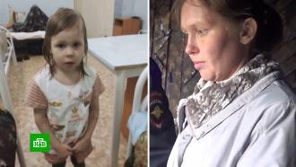 Девочке из Читы, которую пыталась сжечь мать, нужна дорогостоящая реабилитация.НТВ.Ru: новости, видео, программы телеканала НТВ